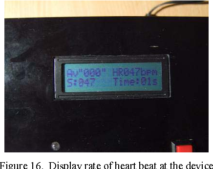 Abnormal heart rate detection device warning via mobile