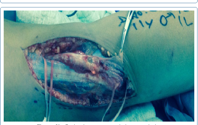 Figure 2b: Drained cyst content during neurolysis.