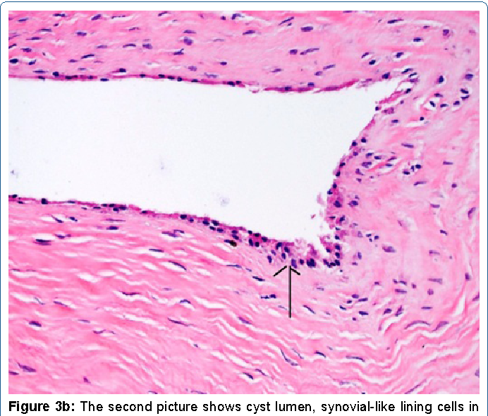 Figure 3b: The second picture shows cyst lumen, synovial-like lining cells in the lumen and compact connective tissue in the wall (HE, X200).