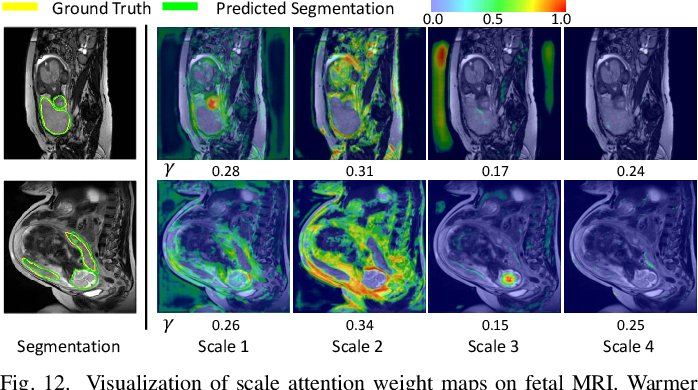 Figure 4 for CA-Net: Comprehensive Attention Convolutional Neural Networks for Explainable Medical Image Segmentation