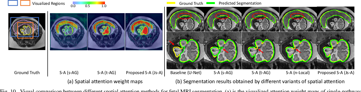 Figure 2 for CA-Net: Comprehensive Attention Convolutional Neural Networks for Explainable Medical Image Segmentation
