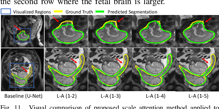 Figure 3 for CA-Net: Comprehensive Attention Convolutional Neural Networks for Explainable Medical Image Segmentation