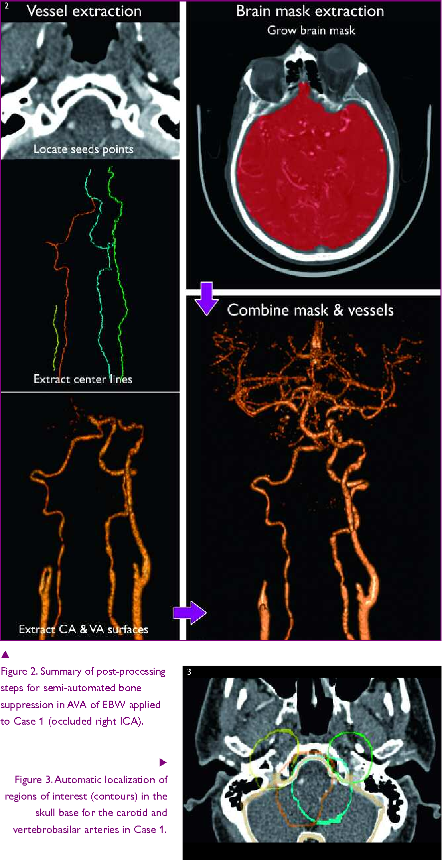 The emerging role of cerebral CTA in carotid diagnosis and ...