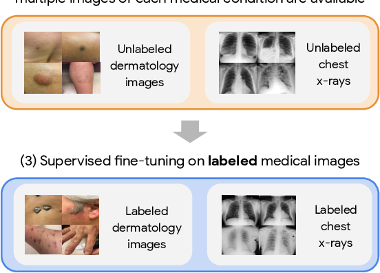 Figure 1 for Big Self-Supervised Models Advance Medical Image Classification