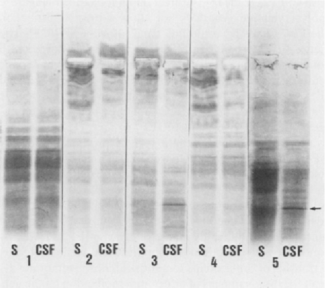 Fig. 4. Sequence as in Fig. 1; MS patient no. 31, Table l. IgG oligoclonal bands are negative; a sharp FLC of lambda type is shown by the