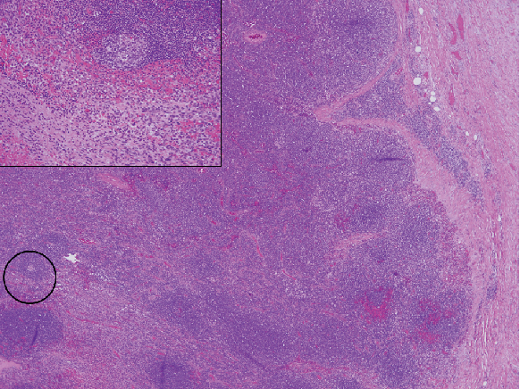 Figure 2. Metastatic malignant peripheral nerve sheath tumor (MPNST) in a conglomerate lymph node.