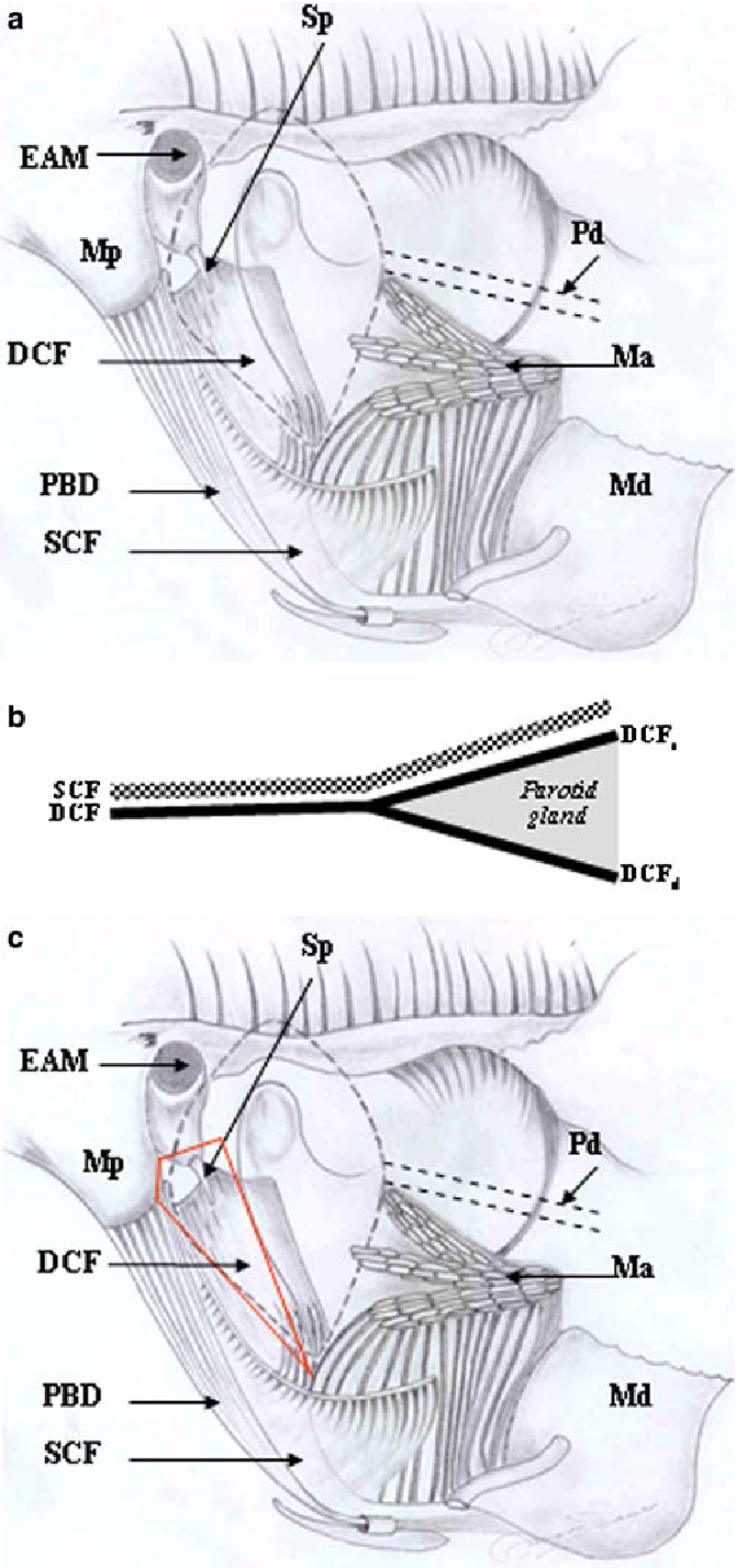 The surgical anatomy of the parotid fascia - Semantic Scholar