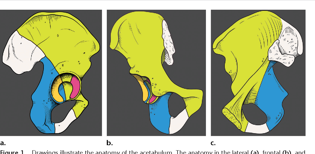 Creating Three Dimensional Printed Models Of Acetabular Fractures