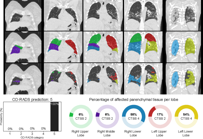 Figure 3 for A review of deep learning in medical imaging: Image traits, technology trends, case studies with progress highlights, and future promises