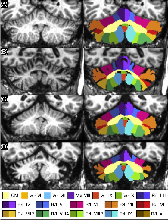 Figure 4 for A review of deep learning in medical imaging: Image traits, technology trends, case studies with progress highlights, and future promises