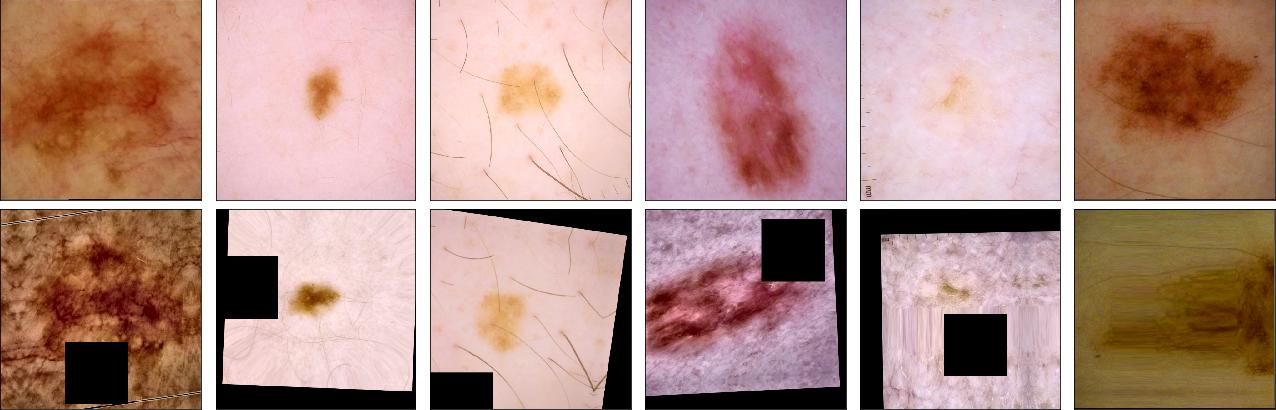 Figure 3 for Identifying Melanoma Images using EfficientNet Ensemble: Winning Solution to the SIIM-ISIC Melanoma Classification Challenge