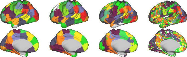 Figure 1 for Exploring Heritability of Functional Brain Networks with Inexact Graph Matching