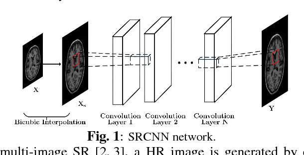Figure 1 for Deep MR Image Super-Resolution Using Structural Priors