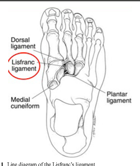 Ultrasound appearance of the normal Lisfranc ligament - Semantic Scholar