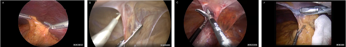 """Figure 1 for """"Train one, Classify one, Teach one"""" -- Cross-surgery transfer learning for surgical step recognition"""
