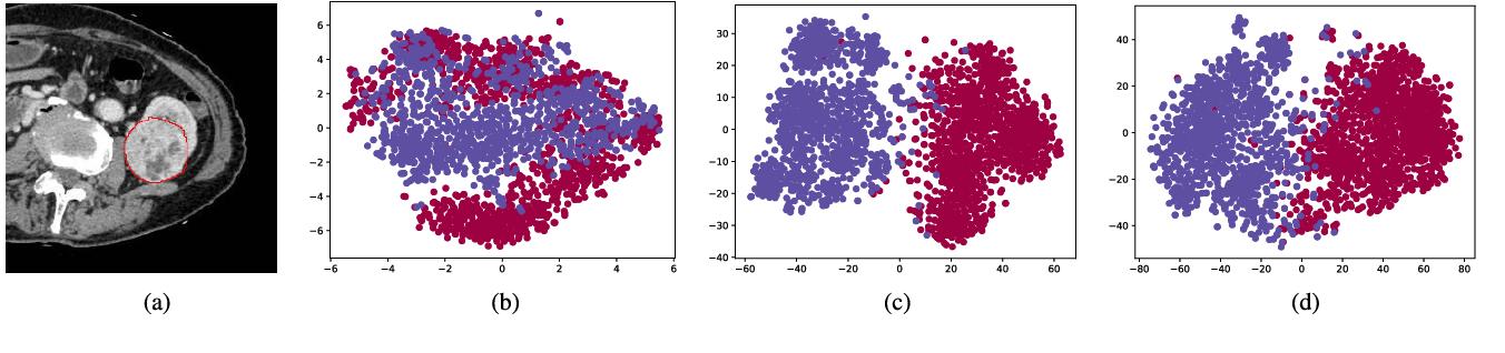 Figure 2 for Crossbar-Net: A Novel Convolutional Network for Kidney Tumor Segmentation in CT Images