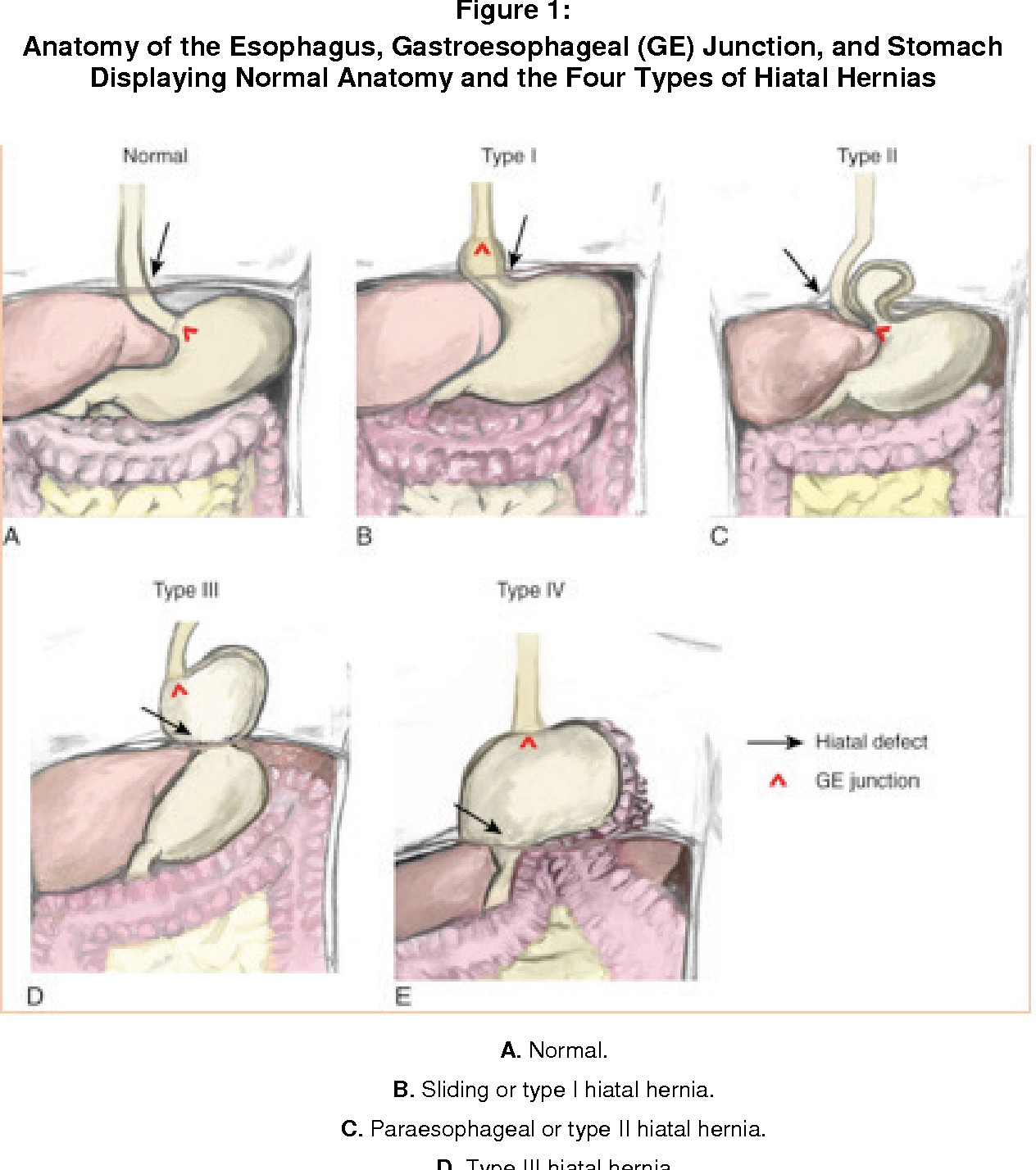 Figure 1 from Laparoscopic Paraesophageal Hernia Reduction with Two ...