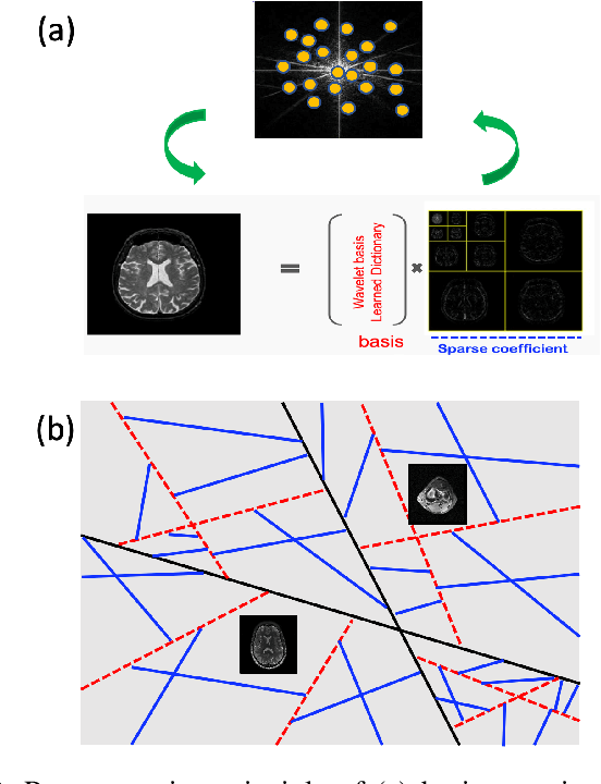 Figure 3 for Geometric Approaches to Increase the Expressivity of Deep Neural Networks for MR Reconstruction
