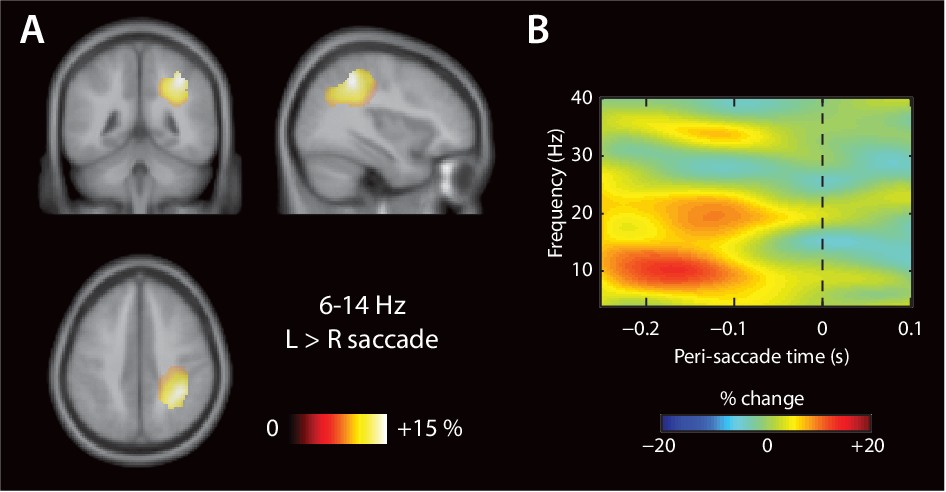 Figure 6.4: Alpha power over right posterior parietal cortex is elevated prior to a le ward, when compared with a rightward, saccade. (A) DICS beamformer results of alpha power, interpolated onto theMontreal Neurological Institute (MNI) template brain. e topographical map