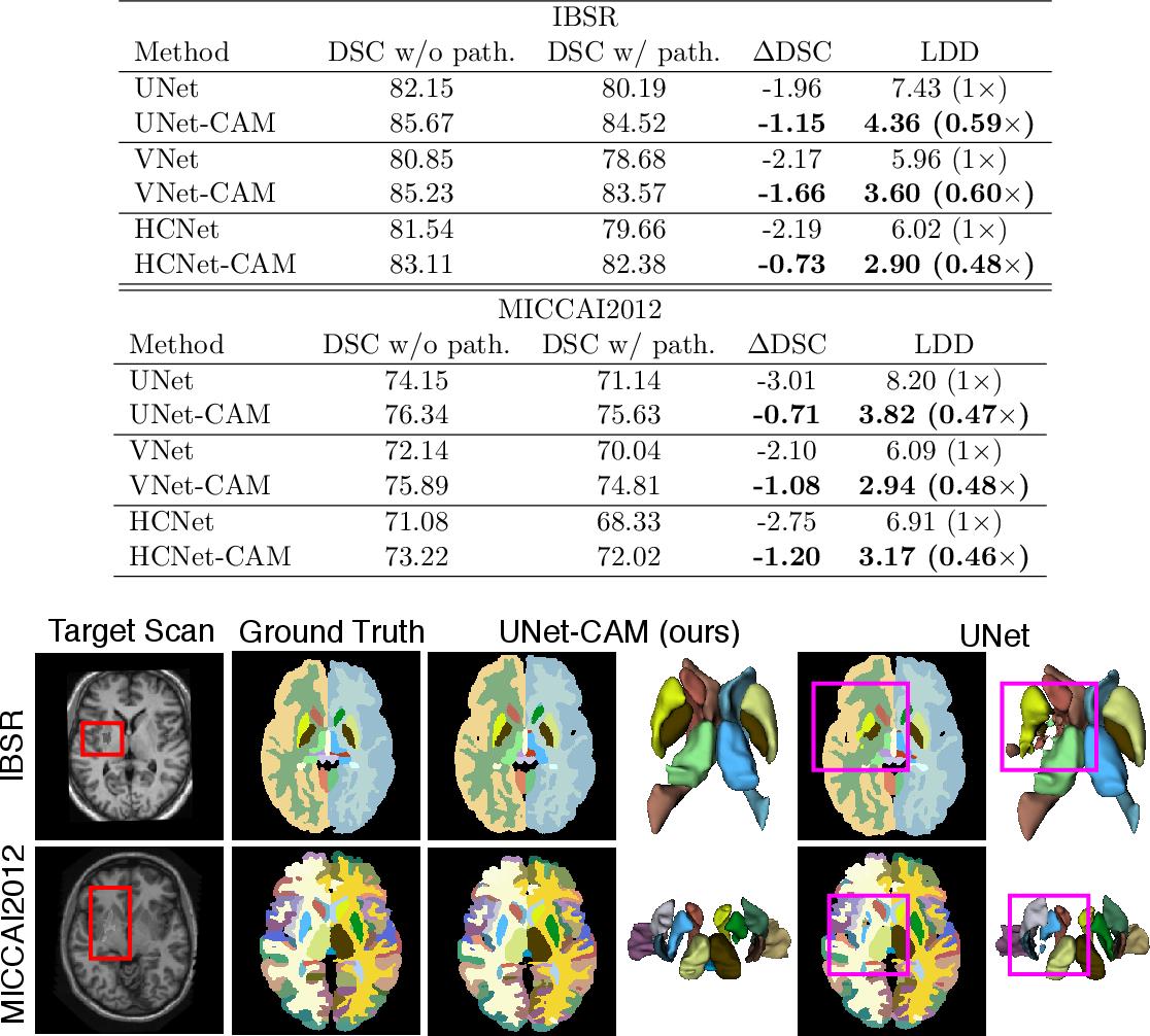 Figure 4 for Atlas-aware ConvNetfor Accurate yet Robust Anatomical Segmentation