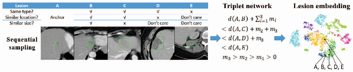 Figure 1 for Deep Lesion Graphs in the Wild: Relationship Learning and Organization of Significant Radiology Image Findings in a Diverse Large-scale Lesion Database