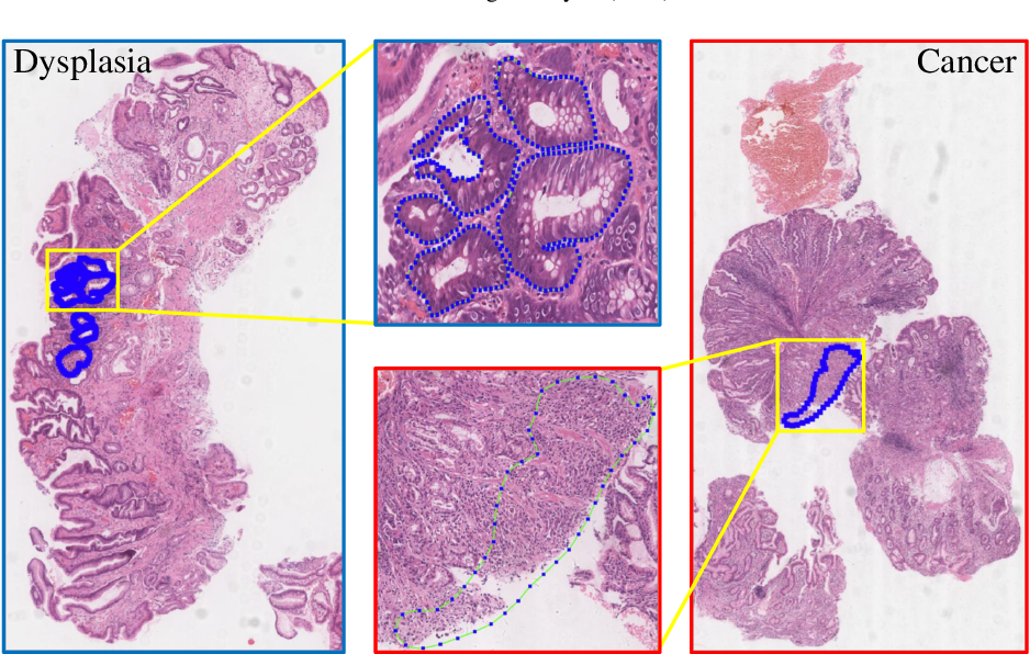 Figure 1 for RMDL: Recalibrated multi-instance deep learning for whole slide gastric image classification