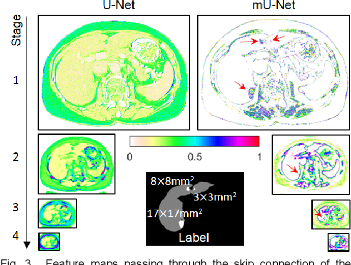 Figure 4 for Modified U-Net (mU-Net) with Incorporation of Object-Dependent High Level Features for Improved Liver and Liver-Tumor Segmentation in CT Images