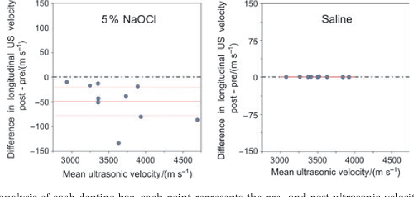 Ultrasonic monitoring of the effect of sodium hypochlorite