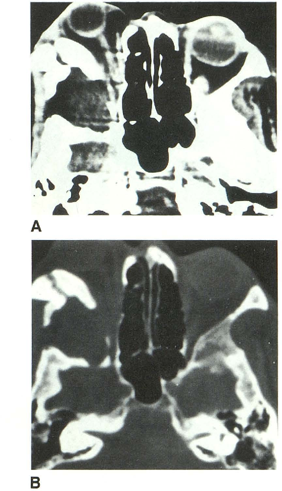 PDF] Infected epidermoid cyst of the sphenoid bone