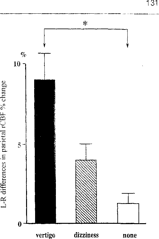 Figure 3. Correlation between perception of selfmotion and left-right differences in parietal % Change in rCBF induced by caloric stimulation with cold air. Columns and bars represent means ±SE in subjects with sensation of vertigo (n = 4), dizziness (n = 2), and no sensation of any self-motion (n = 4). * p < 0.05.