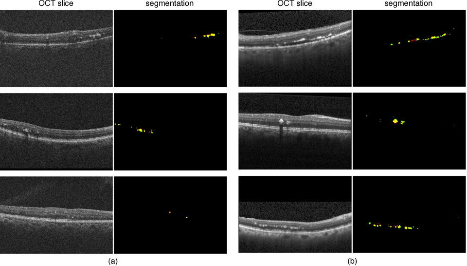 Figure 3 for Fully Automated Segmentation of Hyperreflective Foci in Optical Coherence Tomography Images