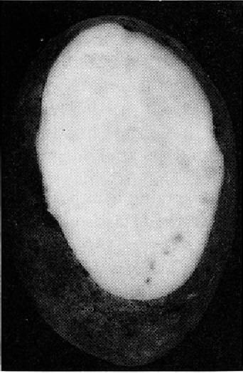 Fig. 2. Kin~,* Edward, primary infeclion.
