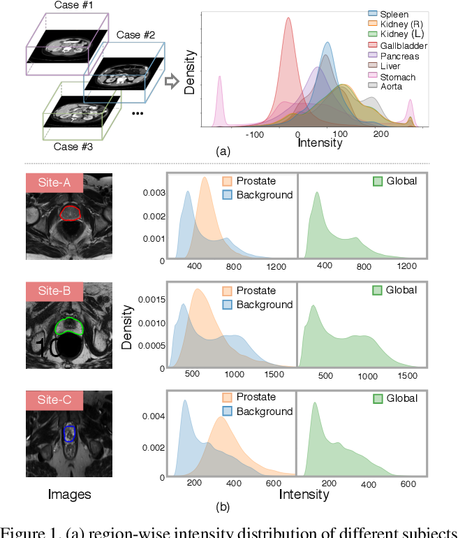 Figure 1 for DualNorm-UNet: Incorporating Global and Local Statistics for Robust Medical Image Segmentation