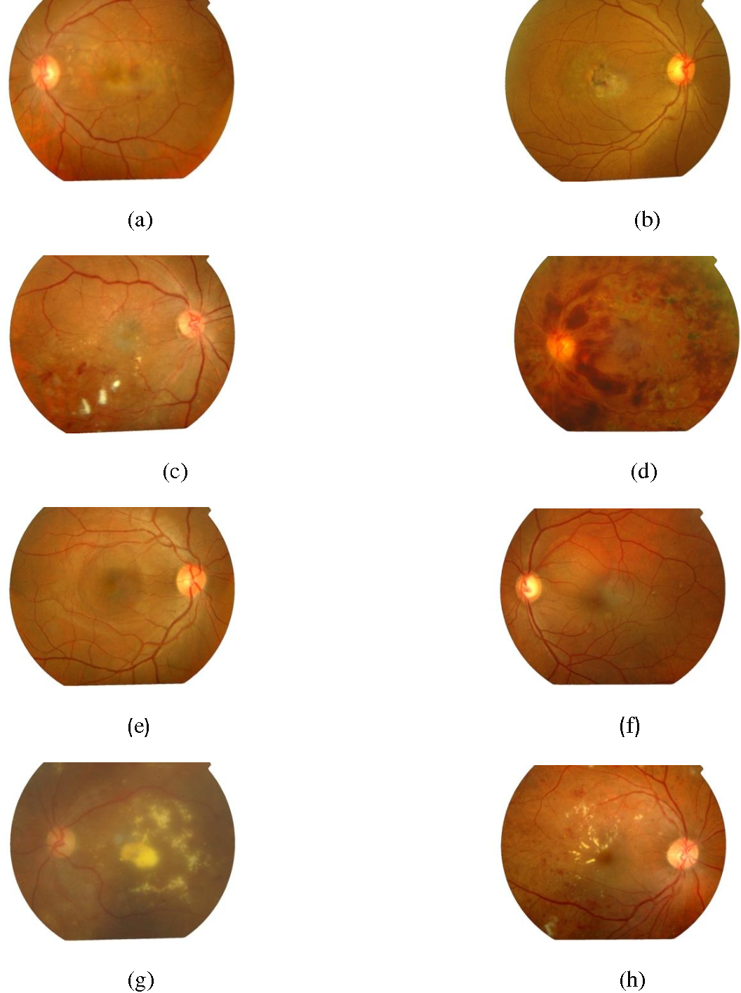 Figure 3.2 from Proliferative Diabetic Retinopathy (NPDR), Central ...