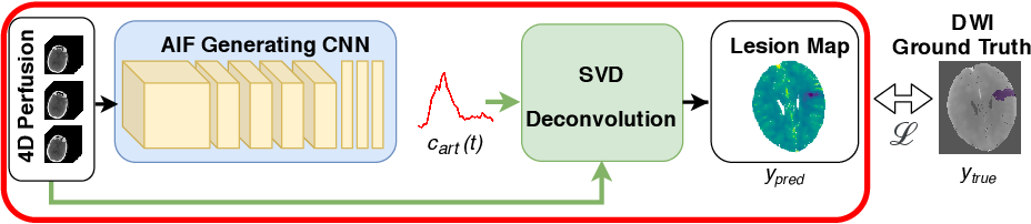 Figure 1 for Differentiable Deconvolution for Improved Stroke Perfusion Analysis