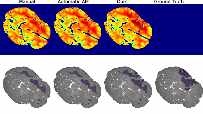 Figure 3 for Differentiable Deconvolution for Improved Stroke Perfusion Analysis