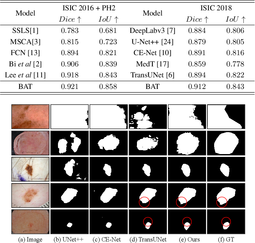 Figure 4 for Boundary-aware Transformers for Skin Lesion Segmentation