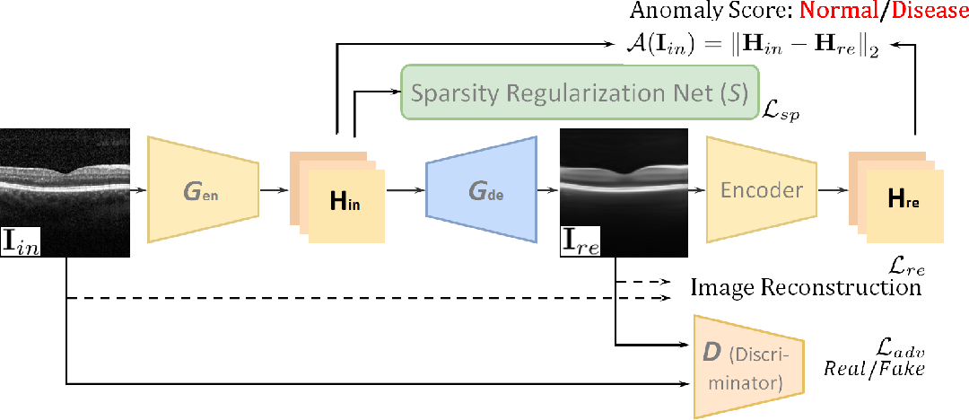 Figure 3 for Sparse-GAN: Sparsity-constrained Generative Adversarial Network for Anomaly Detection in Retinal OCT Image