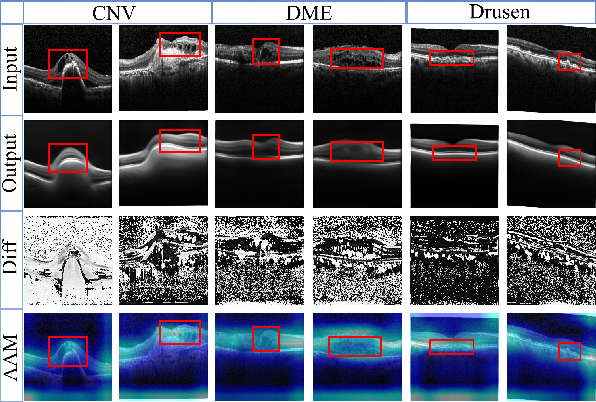 Figure 4 for Sparse-GAN: Sparsity-constrained Generative Adversarial Network for Anomaly Detection in Retinal OCT Image