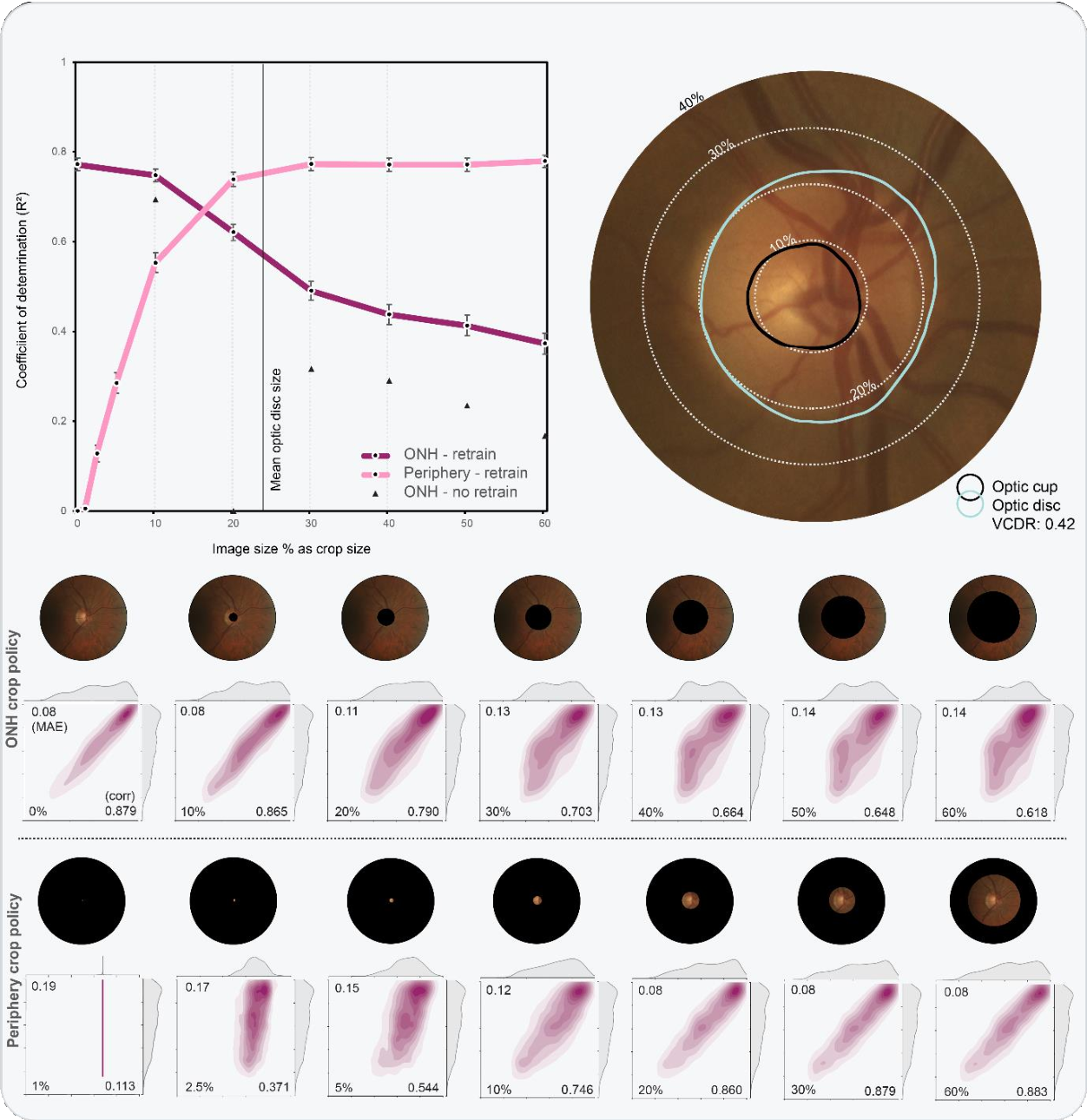 Figure 2 for Glaucoma detection beyond the optic disc: The importance of the peripapillary region using explainable deep learning