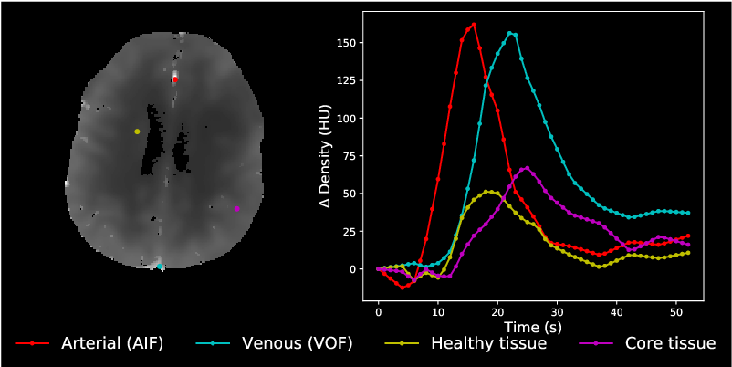 Figure 1 for AIFNet: Automatic Vascular Function Estimation for Perfusion Analysis Using Deep Learning