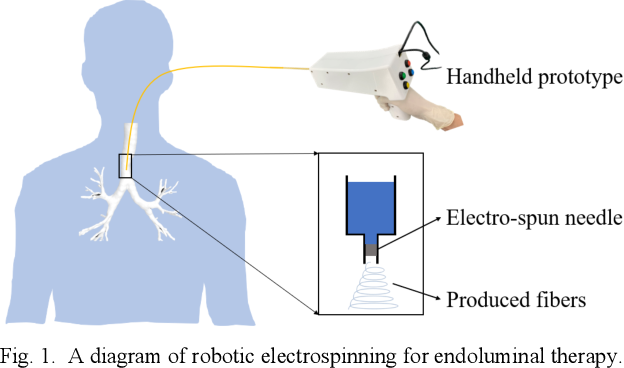 Figure 1 for Robotic Electrospinning Actuated by Non-Circular Joint Continuum Manipulator for Endoluminal Therapy