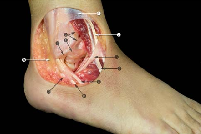 Anatomy of the ankle ligaments: a pictorial essay - Semantic Scholar