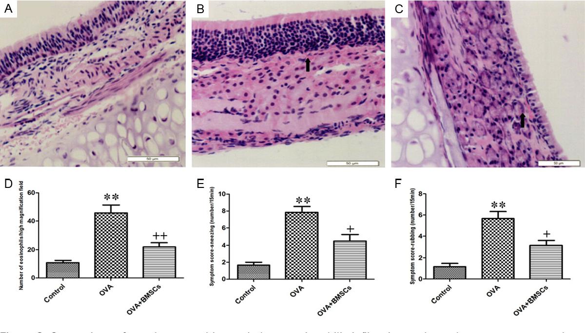 PDF] Bone marrow-derived mesenchymal stem cells reduce