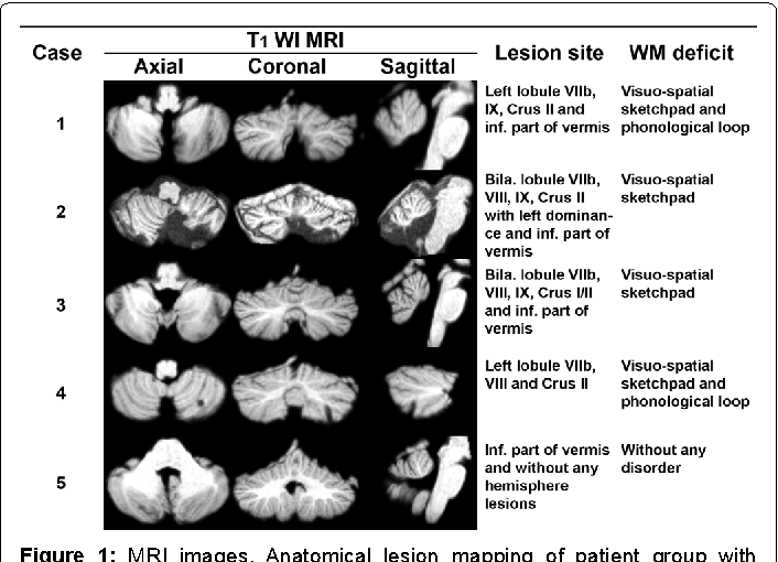Figure 1: MRI images. Anatomical lesion mapping of patient group with lobules labelled from the Spatially Unbiased Infratentorial Template (SUIT) of the cerebellum and brainstem (method of Diedrichsen et al. [22]) and being visualized on MRICroN software.