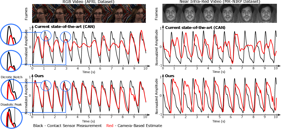 Figure 3 for The Benefit of Distraction: Denoising Remote Vitals Measurements using Inverse Attention