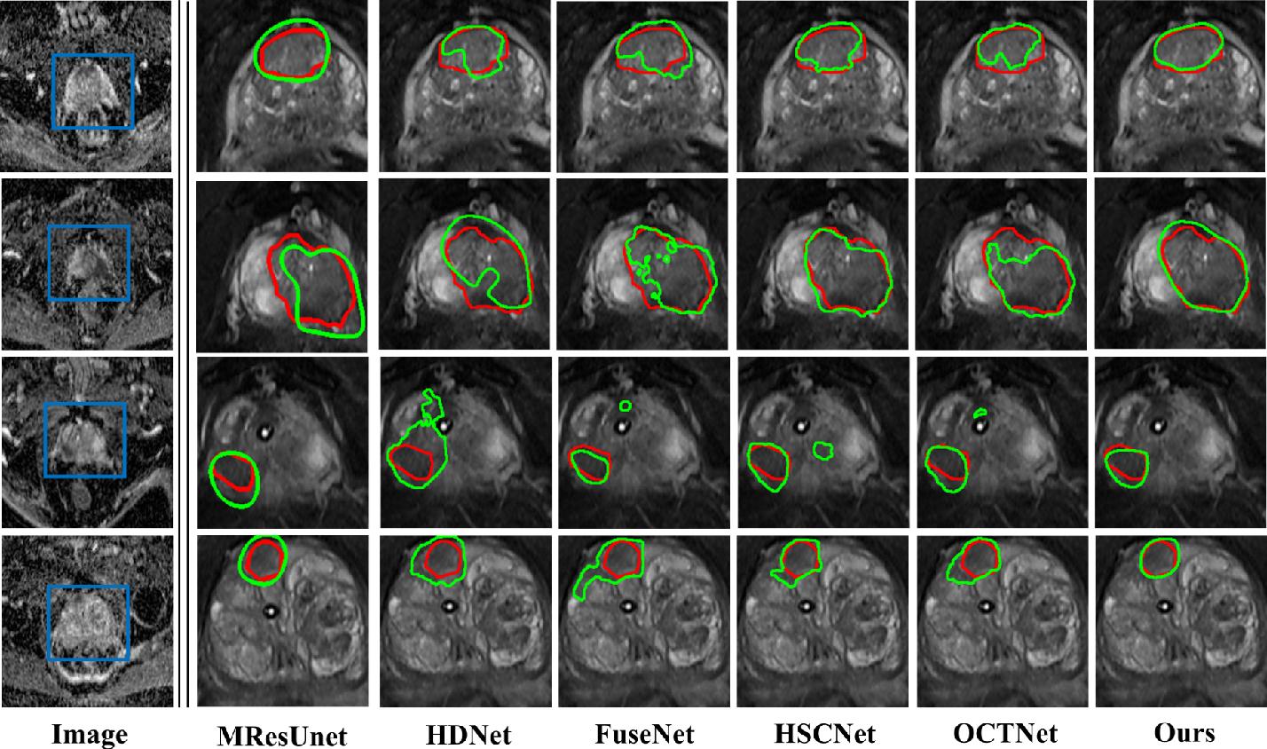Figure 3 for Cross-Modal Self-Attention Distillation for Prostate Cancer Segmentation