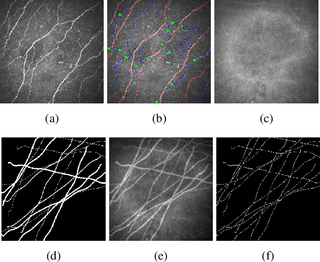 Figure 1 for A Spatially Constrained Deep Convolutional Neural Network for Nerve Fiber Segmentation in Corneal Confocal Microscopic Images using Inaccurate Annotations