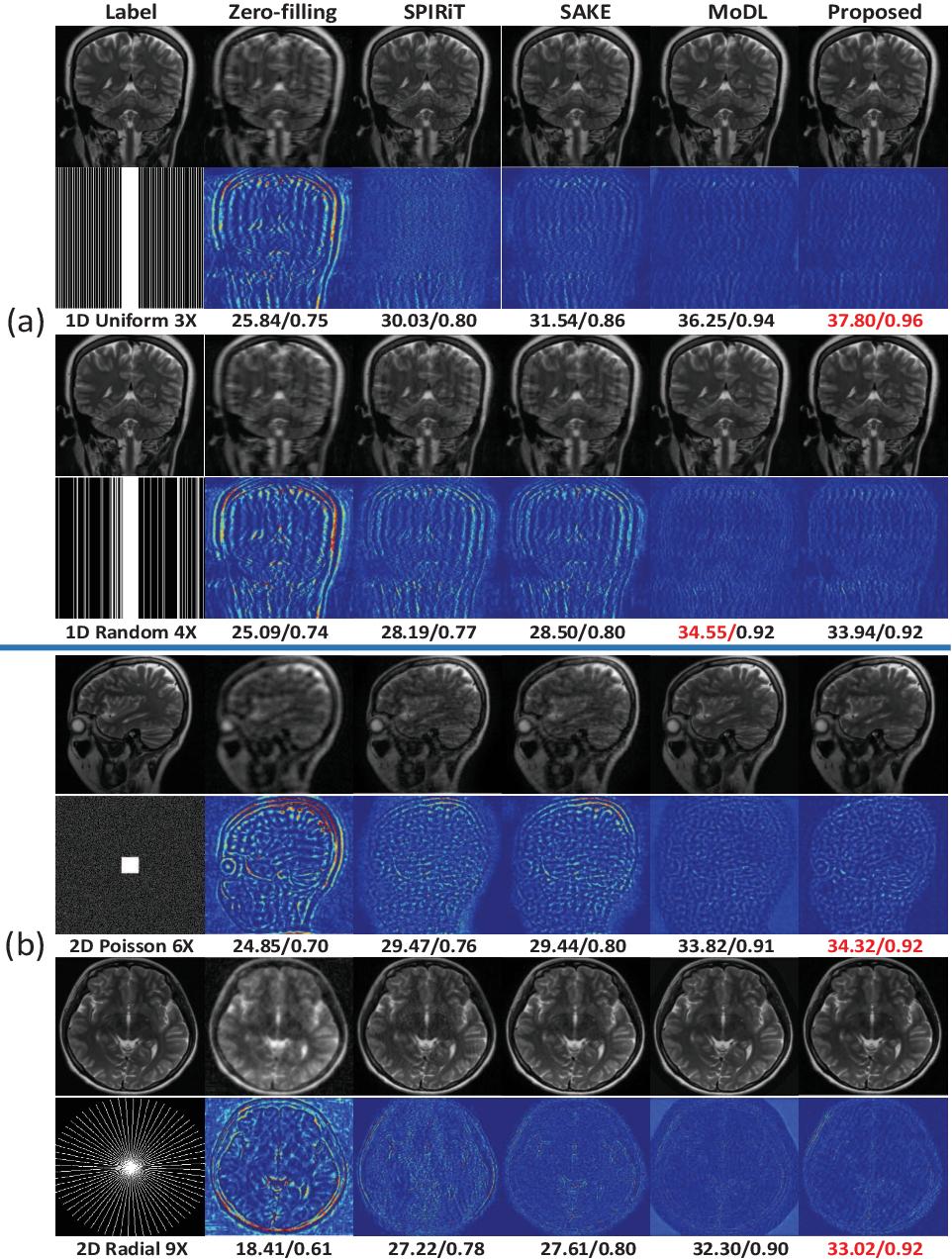 Figure 4 for Model-based Convolutional De-Aliasing Network Learning for Parallel MR Imaging