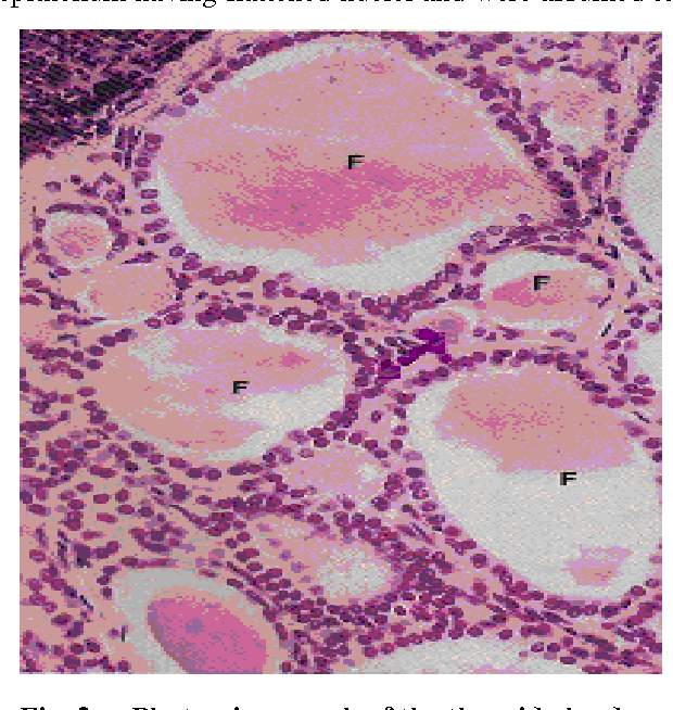 Figure 2 From Gross And Microscopic Anatomy Of Thyroid Gland Of One